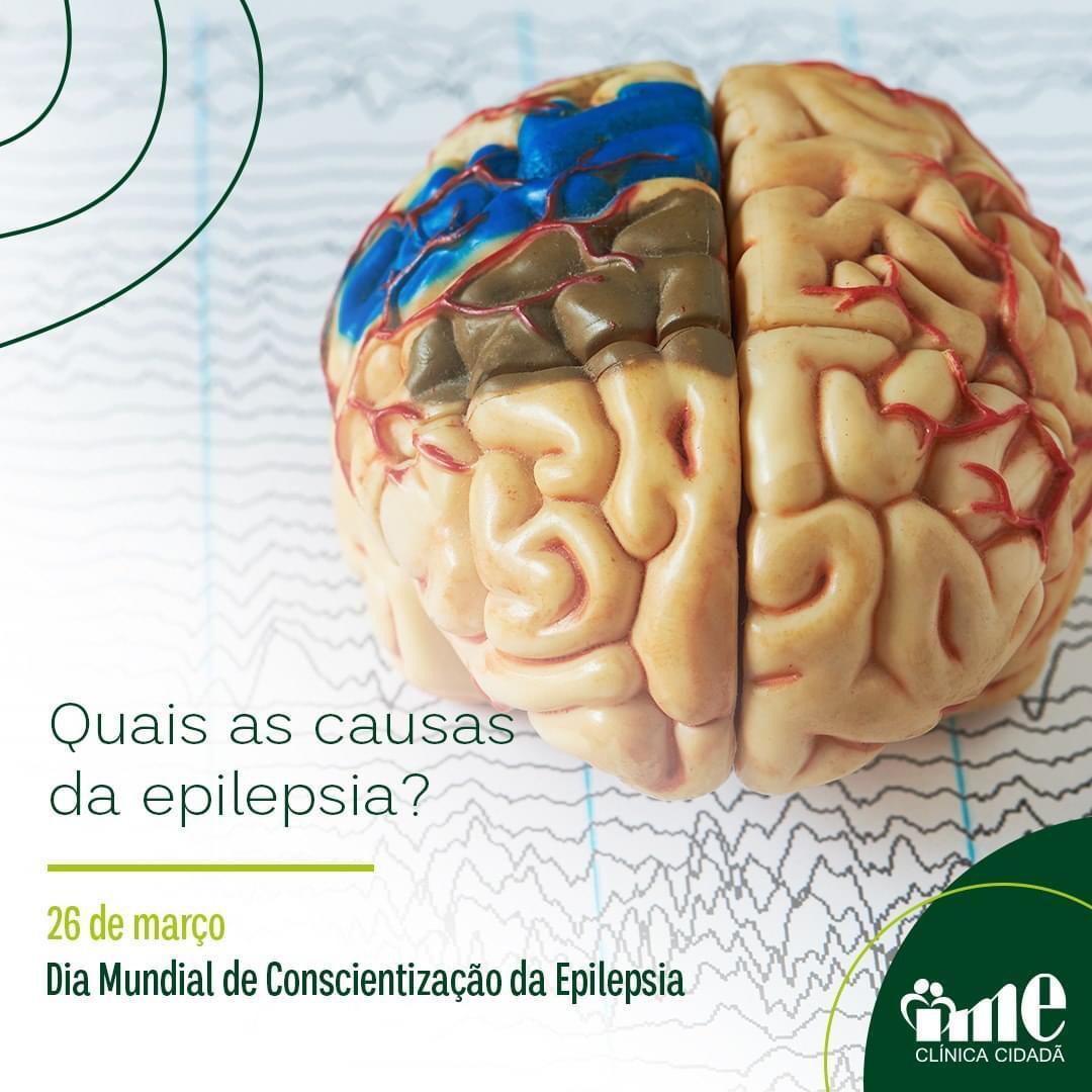 Read more about the article Quais as causas da epilepsia?