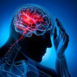 Acidente Vascular Cerebral – AVC