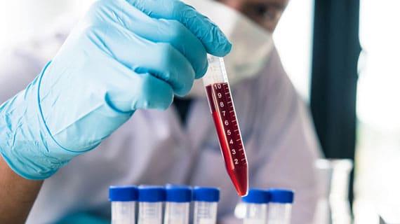 Hematologia - IME - Clínica Cidadã